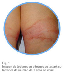 Qu es la dermatitis at pica multilind cuidado de la for Dermatitis atopica piscina cloro